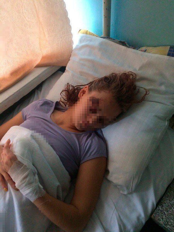 Сбитая на переходе в Кировском районе 17-летняя волгоградка до сих пор в реанимации