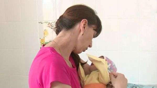 В Волгограде хирурги спасли от смерти младенца с двумя пищеводами