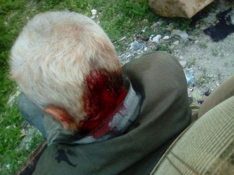 В Волгограде пострадавшего от рук школьника бездомного пенсионера выгнали из больницы