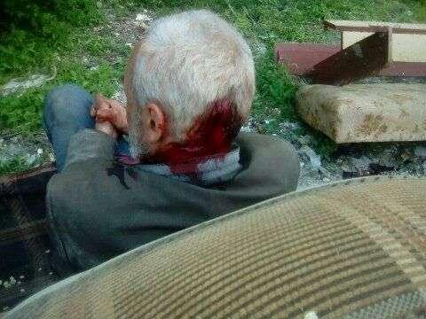 В Волгограде ученик начальных классов пробил камнем голову пенсионеру