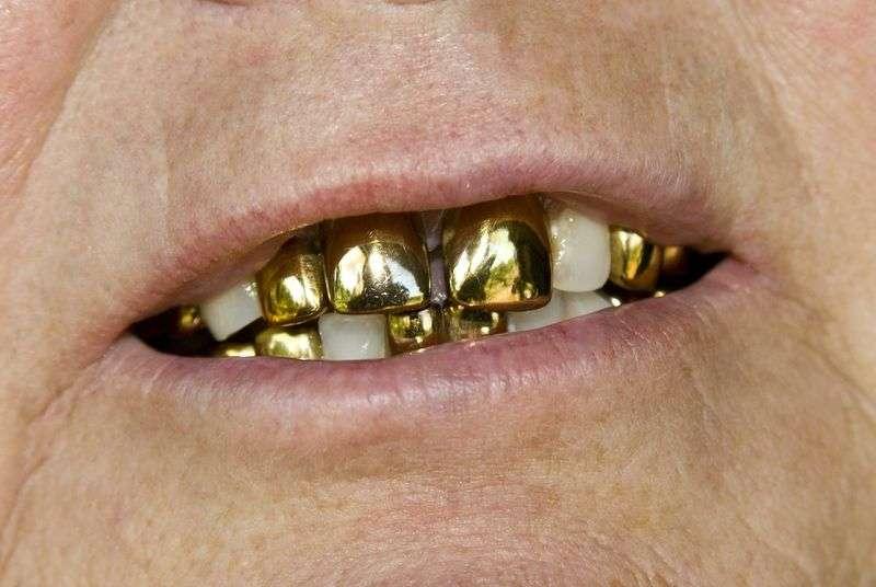 В Волгограде завели «дело реставраторов» стоматологии