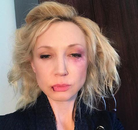 Кристина Орбакайте показала следы побоев на лице