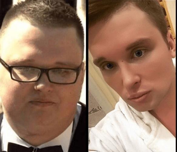 «Российский Кен» Егор Холявин проходит реабилитацию от анорексии