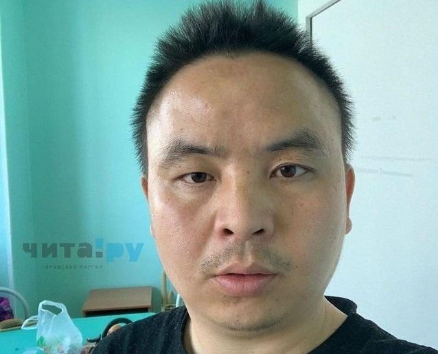 Читинские врачи неделю не могут сказать, болен ли китаец коронавирусом или нет