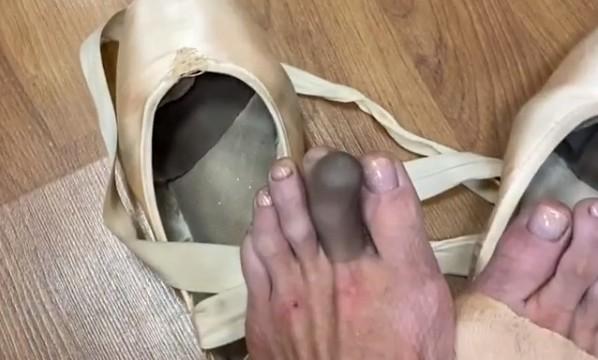 Волочкова обнародовала жуткое видео с посиневшими ногами
