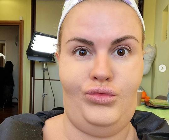 «Наконец-то без фотошопа!»: Анна Семенович показала селфи с тремя подбородками
