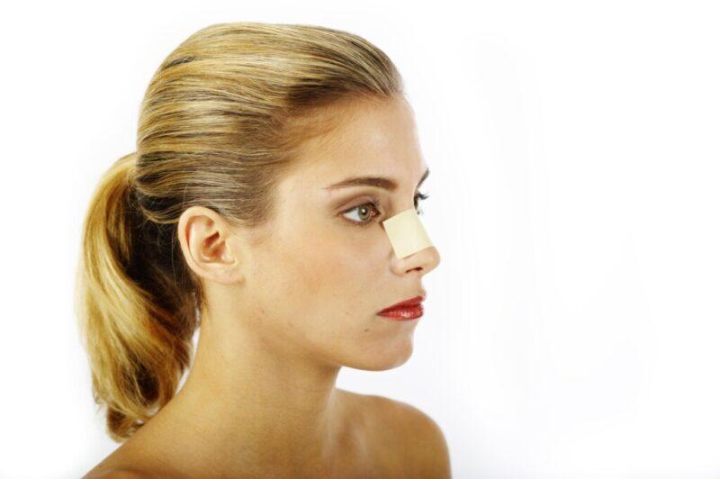 «Провисший» кончик носа после пластики не удалось отстоять волгоградке в суде